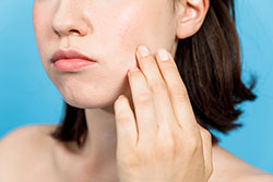 顔ダニで肌トラブルが頻発!? 顔に生息するダニの正体とは