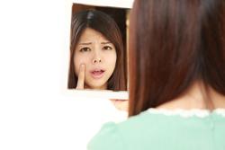 ママ必見!「産後ニキビ」の原因と対策ケアテクニック